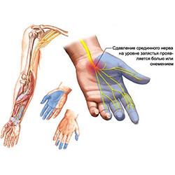 Vaikeste ola liigeste artroosi ravi