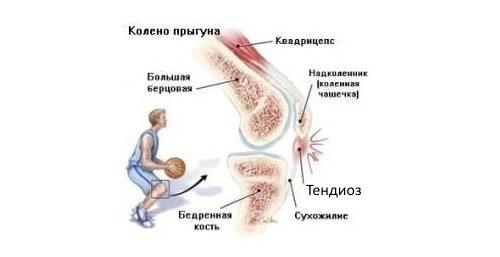 valus ja lohkuda poidla liigese Valud sorme liigestega