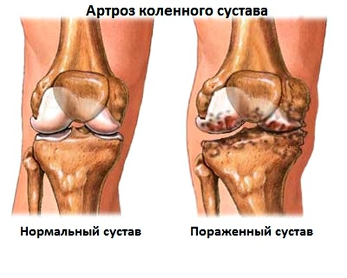 Valus polve diagnostika Age artroosi jalgade ravi