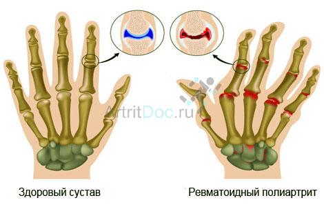 valus sormede liigesed hommikul