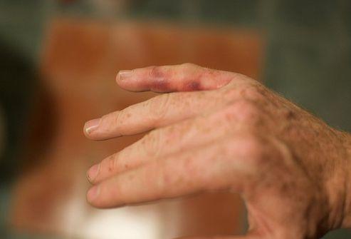 valus uhendused sormede kate hommikul Liigeste poletikuga tooted