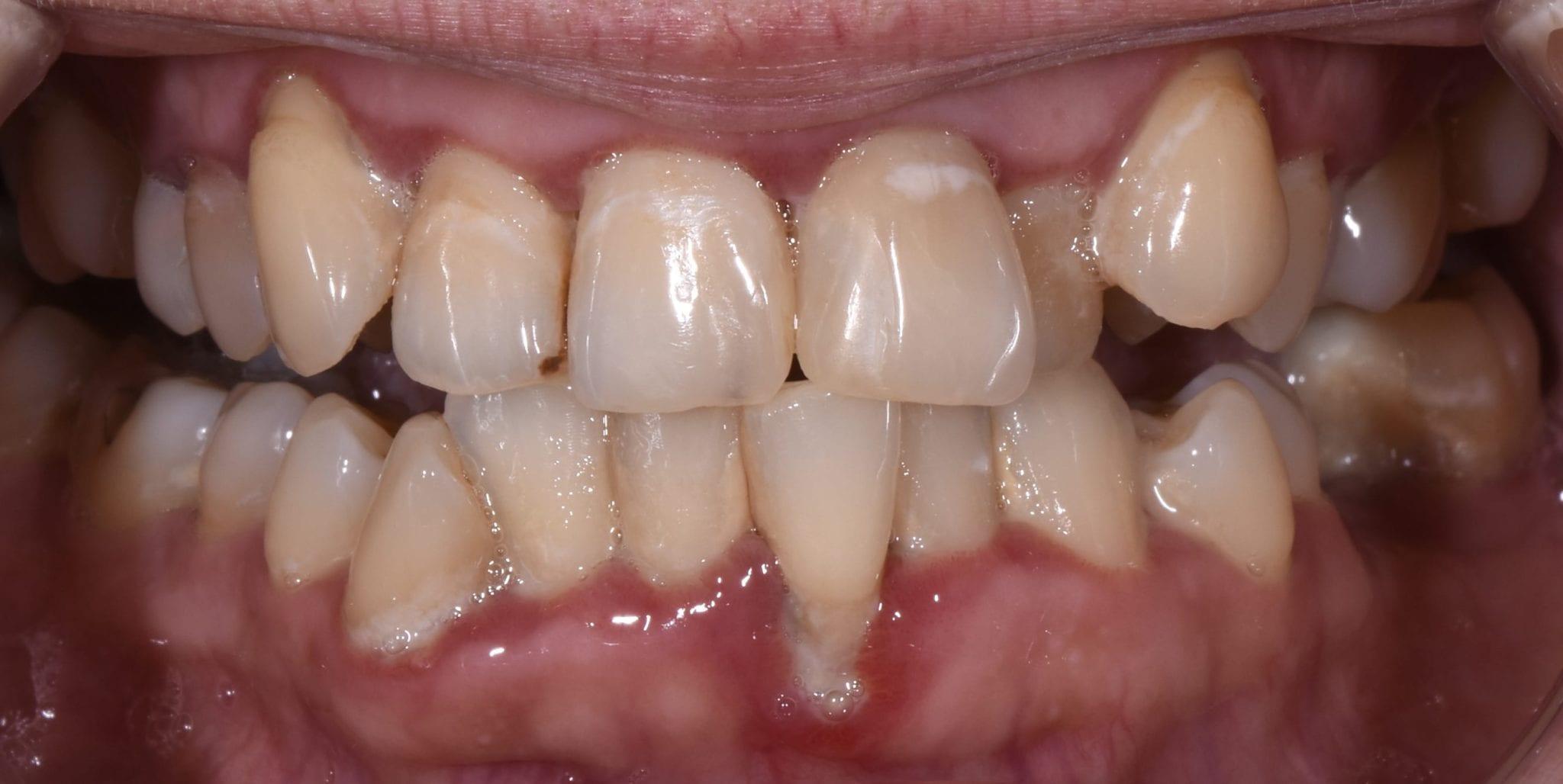 Valutab liigese parast hamba eemaldamist