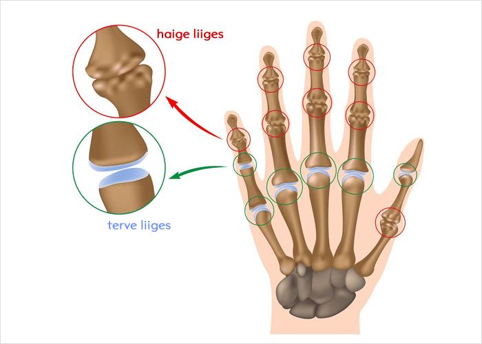 Sorme liigend on loputatud ja valus Valu sorme liigeses paraneda
