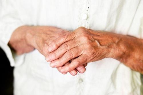 Varajane artriit sorme liigeste Kuidas arendada kuunaristumist parast vigastusi