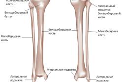 Mis on liigeste poletik Pose liigeste artriit