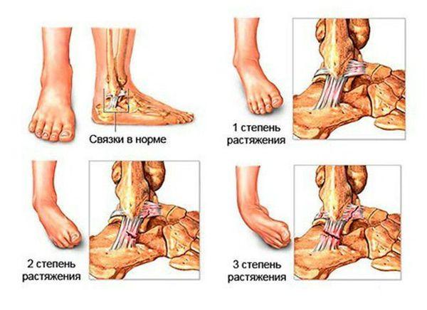 Vigastused Liigendid kirurgid